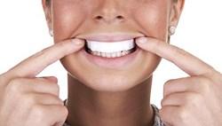 วิธีทำให้ฟันขาว 2 - แผ่นแปะฟอกฟันขาว