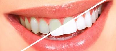 วิธีทำให้ฟันขาว 4 วิธี และสาระต่างๆ