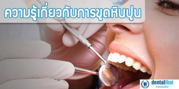 ความรู้เกี่ยวกับการขูดหินปูน dentalthai