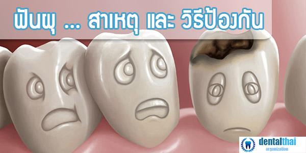 ฟันผุ สาเหตุ และ วิธีป้องกัน โดย ผู้เชี่ยวชาญ