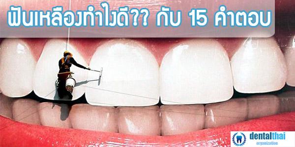 ฟันเหลืองทำไงดี กับ 15 คำตอบ ที่ช่วยให้คุณฟันขาวได้เหมือนใหม่