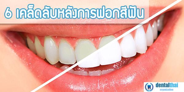 ฟอกสีฟัน dentalthai