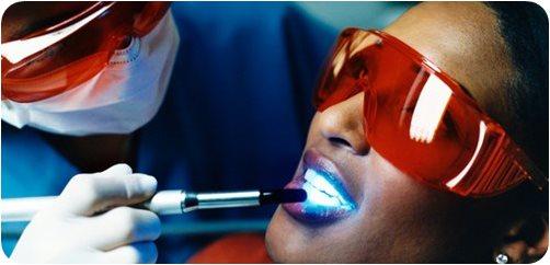 Cool Light Tooth ฟอกฟันให้ขาวด้วยเลเซอร์