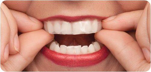 Home Bleaching ฟอกฟันขาว ง่ายๆทำได้ที่บ้าน
