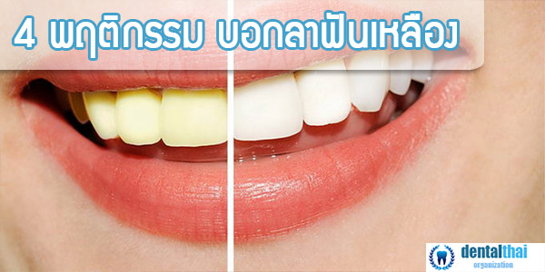 4 พฤติกรรมแก้ฟันเหลือง