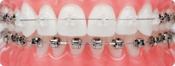 การจัดฟันแบบ Damon System