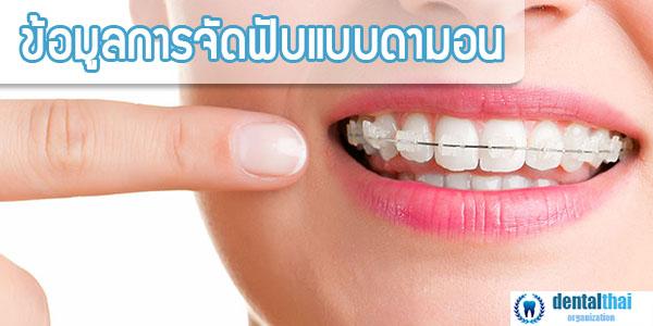 จัดฟันดามอน
