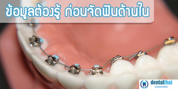 จัดฟันด้านใน | การจัดฟันด้านใน