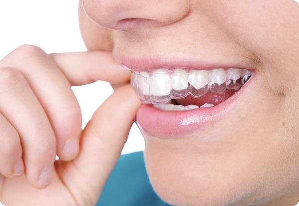 จัดฟันแบบใส