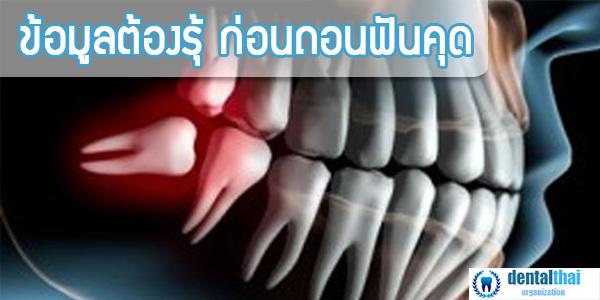 ถอนฟันคุด ข้อมูลต้องรู้ก่อน การถอนฟันคุด