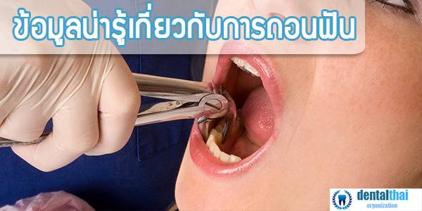 การถอนฟัน , วิธีการถอนฟัน , ถอนฟัน