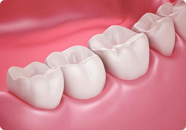 ปวดฟันคุด