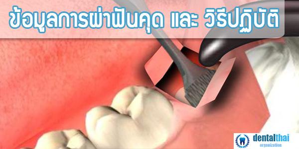 ผ่าฟันคุด - ข้อมูลและการปฏิบัติ โดยละเอียด
