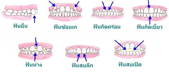 ลักษณะฟันที่ต้องการ การจัดฟัน