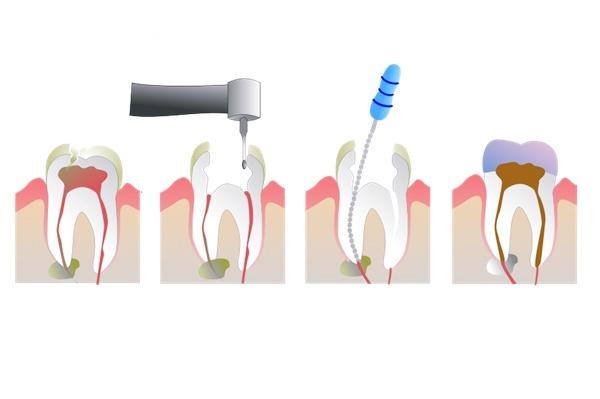 วิธีการอุดฟัน