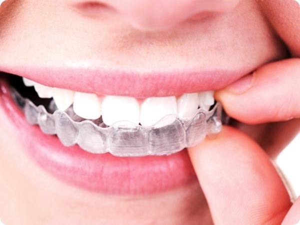 วิธีจัดฟันแบบใส