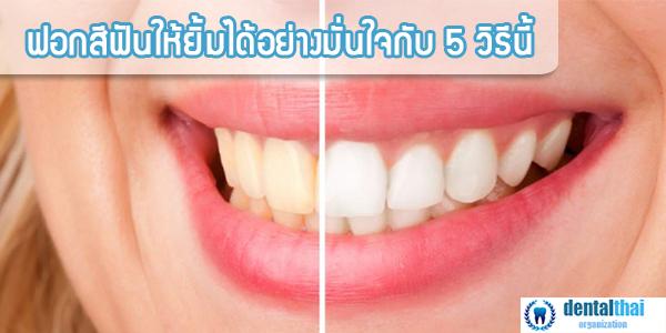 วิธีฟอกสีฟัน