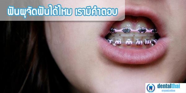 ฟันผุจัดฟันได้ไหม