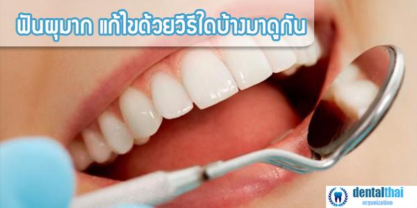 ฟันผุมากทำยังไงดี