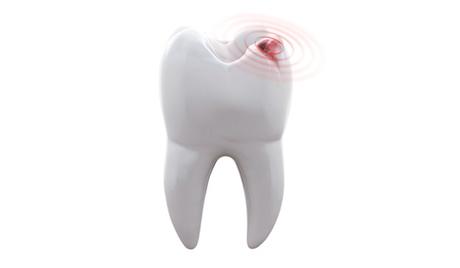 รักษารากฟันราคาเท่าไหร่