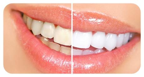วิธีการฟอกสีฟัน