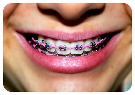 อันตรายที่เกิดขึ้นจากการจัดฟันแฟชั่นส่วนใหญ่